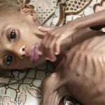 Голодающий в Йемене